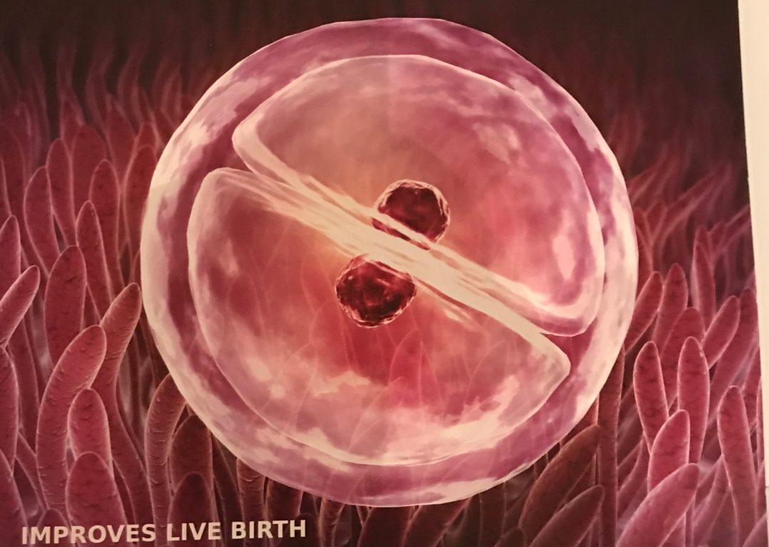 Yumurta Toplama İşlemi (OPU) ve Embriyo Transferi